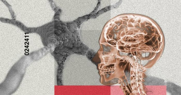 X-ray image of head superimposed on abstract futuristic background