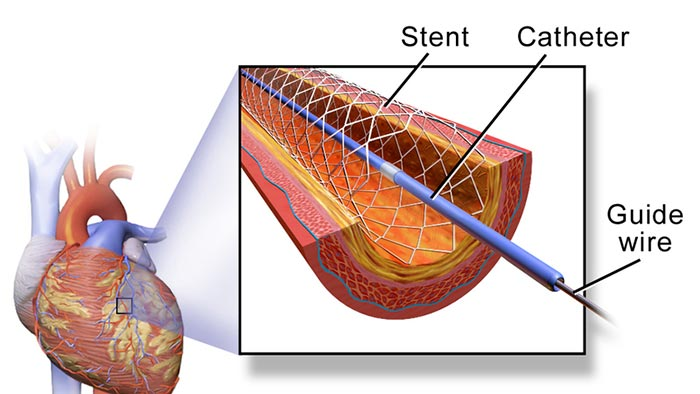 Cross section diagram depicting a stent in a coronary artery